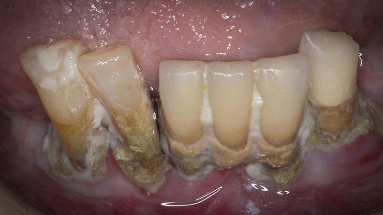 Nursing home dentist mobile dentist perth teeth extractions perth 1