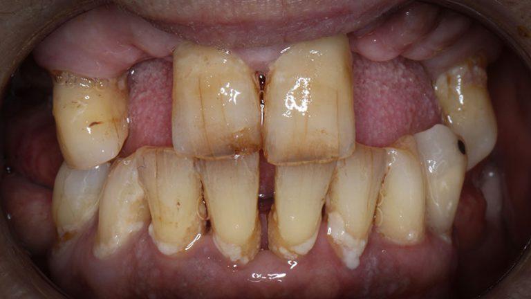 Nursing home dentist mobile dentist perth teeth extractions perth 10