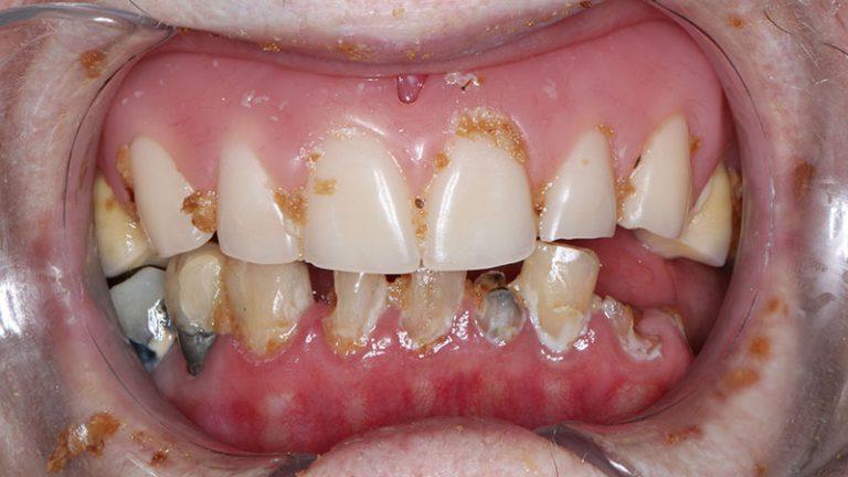 Nursing home dentist mobile dentist perth teeth extractions perth 11