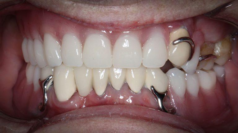 Nursing home dentist mobile dentist perth teeth extractions perth 18