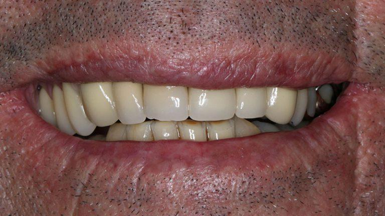Nursing home dentist mobile dentist perth teeth extractions perth 20