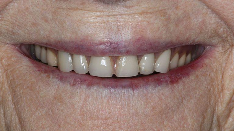 Nursing home dentist mobile dentist perth teeth extractions perth 23