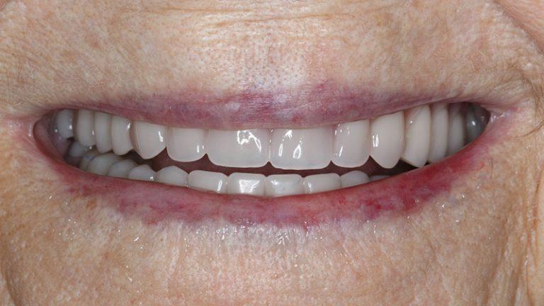Nursing home dentist mobile dentist perth teeth extractions perth 24