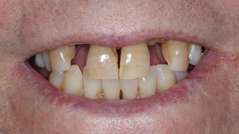 Nursing home dentist mobile dentist perth teeth extractions perth 25