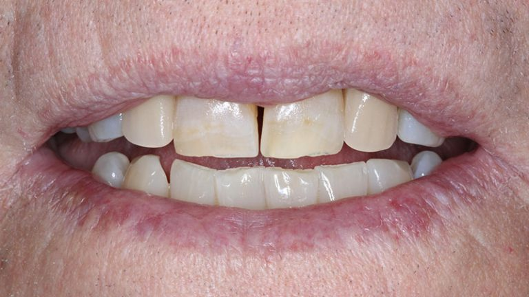 Nursing home dentist mobile dentist perth teeth extractions perth 26