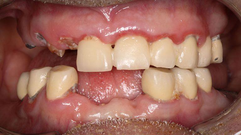 Nursing home dentist mobile dentist perth teeth extractions perth 29
