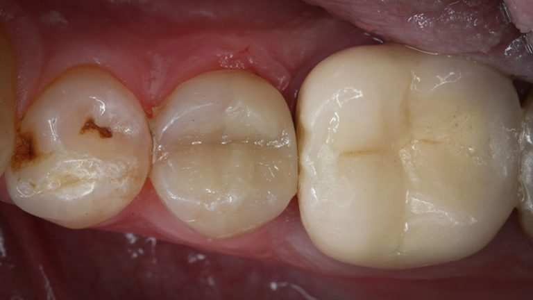 Nursing home dentist mobile dentist perth teeth extractions perth 35