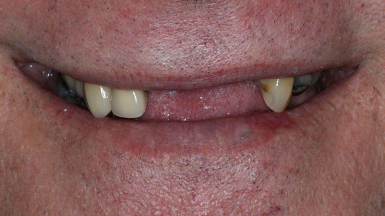 Nursing home dentist mobile dentist perth teeth extractions perth 36