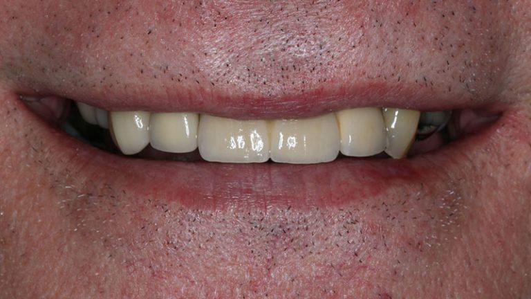 Nursing home dentist mobile dentist perth teeth extractions perth 37