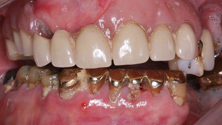 Nursing home dentist mobile dentist perth teeth extractions perth 38