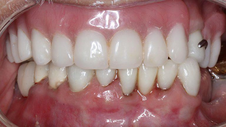 Nursing home dentist mobile dentist perth teeth extractions perth 39