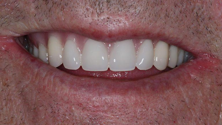 Nursing home dentist mobile dentist perth teeth extractions perth 41