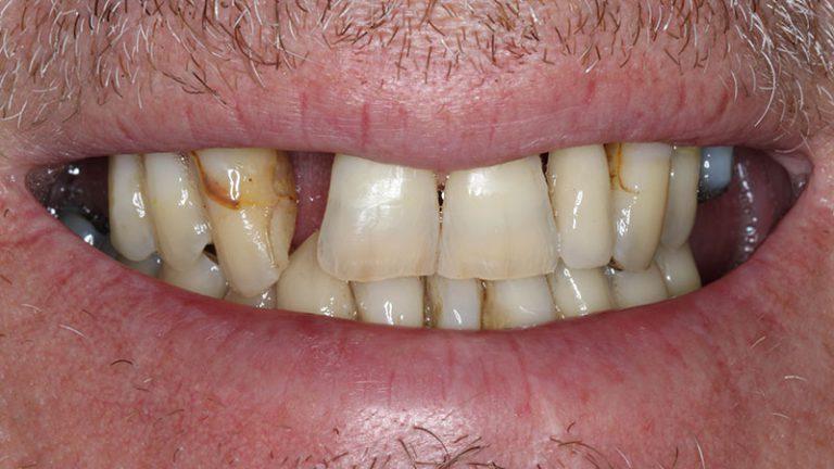 Nursing home dentist mobile dentist perth teeth extractions perth 42