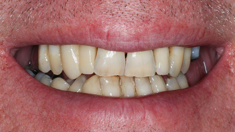 Nursing home dentist mobile dentist perth teeth extractions perth 43