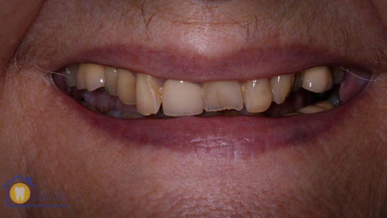 Nursing home dentist mobile dentist perth teeth extractions perth 5