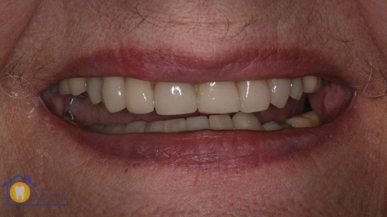 Nursing home dentist mobile dentist perth teeth extractions perth 6