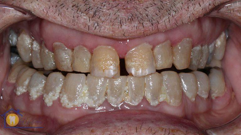 Nursing home dentist mobile dentist perth teeth extractions perth 7