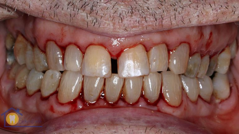 Nursing home dentist mobile dentist perth teeth extractions perth 8
