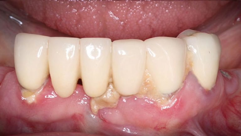 Nursing home dentist mobile dentist perth teeth extractions perth 31